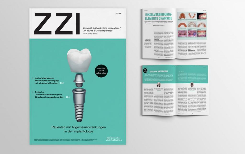 Das neue Gesicht der ZZI, der auflagenstärksten Implantologie-Zeitschrift in Deutschland