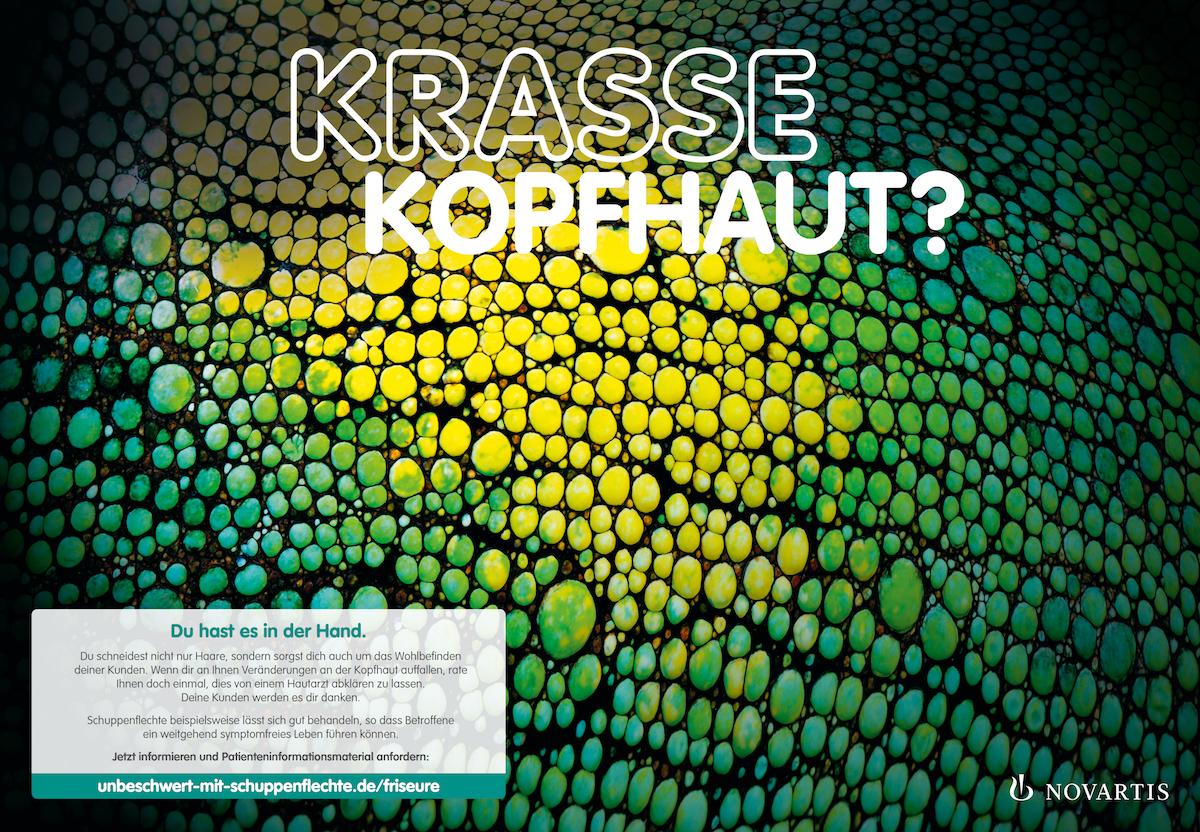 Comprix-2019-prämiert: Krasse Kopfhaut, eine Kampagne von Novartis Deutschland, umgesetzt von Serviceplan Health & Life