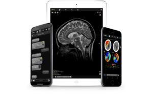 """Die radiologische Abteilung des Universitätsklinikums Ingolstadt hat die App """"myRay"""" eingeführt, mit der Ärzte auf Bildmaterial aus der Radiologie und Neuroradiologie, Urologie und Gastroenterologie zugreifen können."""