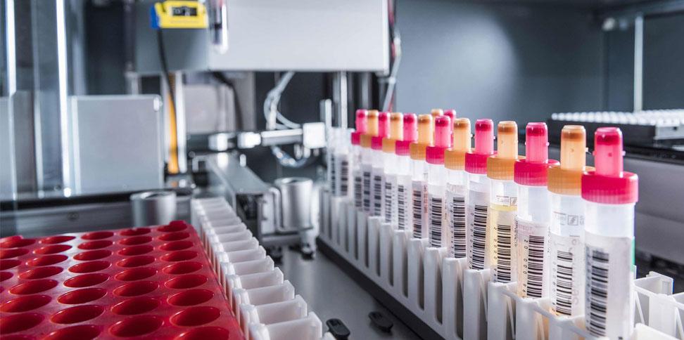 Praktiziertes Beispiel der Digitalen Transformation: In der Biobank am UK Essen werden die Daten aus Tumorgewebe und Flüssigmaterial mit klinischen und diagnostischen Daten aus anderen klinikinternen Informationssystemen verlinkt. © Universitätsklinikum Essen