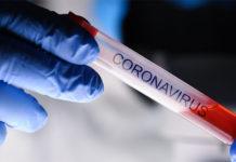 coronavirus Reagenzglas Test
